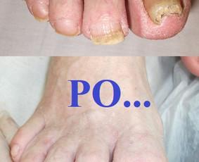 Slaugytoja, pėdos priežiūros specialiste