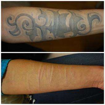 Tatuiruotės šalinimas
