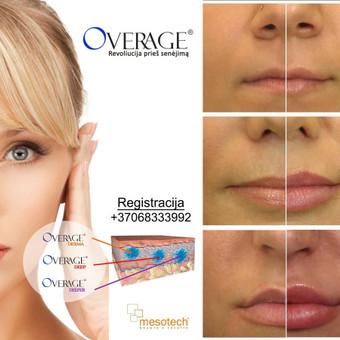 Lūpų putlinimas, hialurono užpildai veidui / MK Grožio Akademija / Beauty Academy / Darbų pavyzdys ID 534349