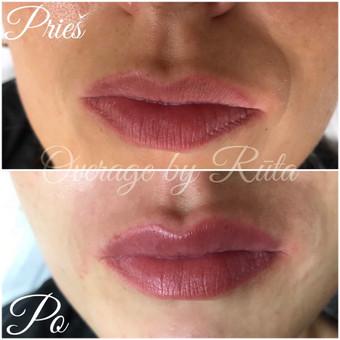 Lūpų putlinimas, hialurono užpildai veidui / MK Grožio Akademija / Beauty Academy / Darbų pavyzdys ID 534353