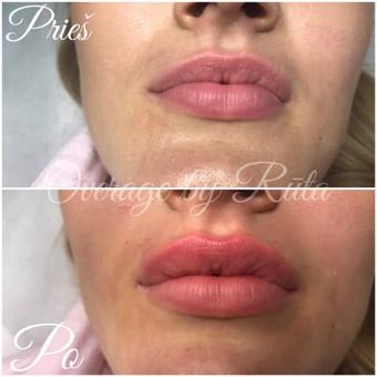Lūpų putlinimas, hialurono užpildai veidui / MK Grožio Akademija / Beauty Academy / Darbų pavyzdys ID 534355