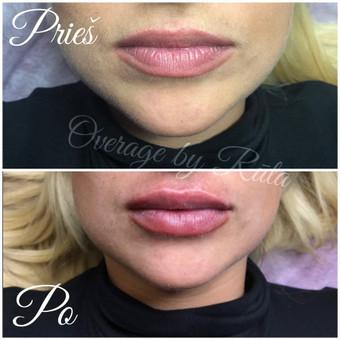 Lūpų putlinimas, hialurono užpildai veidui / MK Grožio Akademija / Beauty Academy / Darbų pavyzdys ID 534357