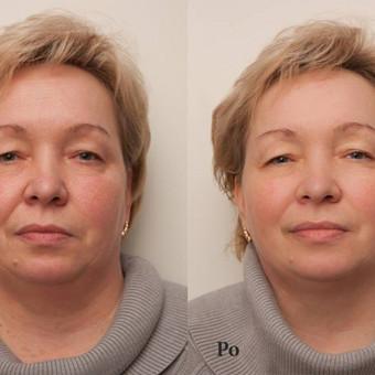 Pavargusios ir papilkėjusios veido odos atstatymas - rezultatas po 1 procedūros