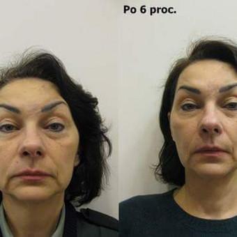Veido ovalo atstatymas, odos patempimas - rezultatas po 6 procedūrų kurso (iš priekio)