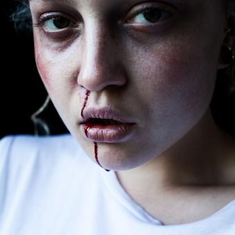 Specialieji efektai ( žaizdos, sumušimai, mėlynės ir t.t) Fotografas-STUL