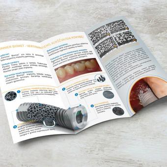 Dantų implantų lankstinukas, schemos sukūrimas, iliustracijų korekcijos ir adaptacija.