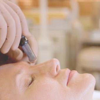 """Mikroterapija ,kitaip perforacija yra naudojama veido arba kūno procedūrų metu, mikro subadymui arba intensyviam odos subadymui atlikti. Tai yra kologeno """"sukūrimo"""" terapija, ypač efektyvi p ..."""