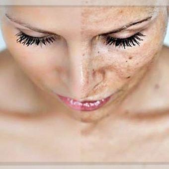 """Cheminis Pilingas   """"Cheminis pilingas""""-  tai epidermio negyvų odos ląstelių atsluoksniavimas, skatinant  sveikos odos atsinaujinimą. Tai saugus dermatologinis gydymas, kurio nauda žinoma  ..."""