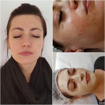 Klientei atliktas cheminis pieno rūgšties odos šveitimas su ODA kosmetika. Ši rūgštis sprendžia tokias problemas kaip dehidratacija, hiperpigmentacija, paviršiniai spuogai, bėrimai, fotosenėjimas.